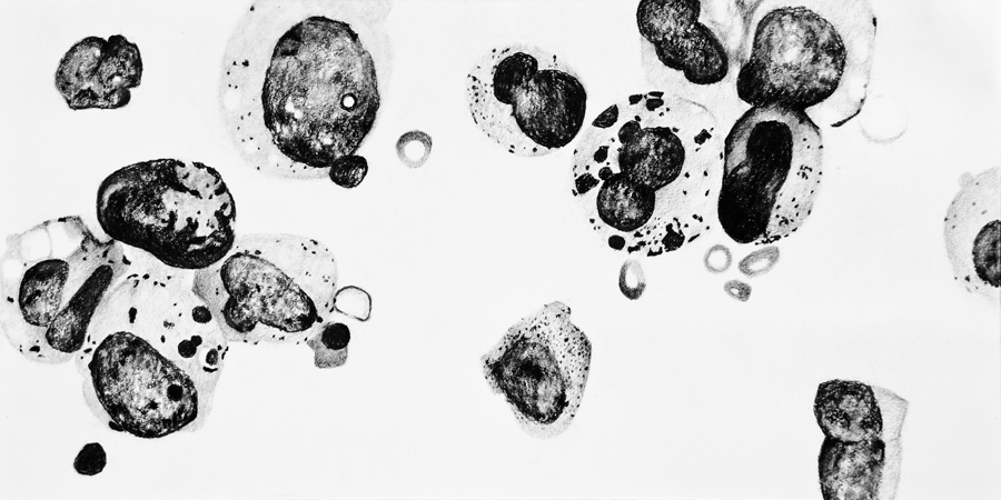 "Jeff Hursey. A-1-9 (Leukemia Cells). 2014, Charcoal on Paper, 18""x30"". $350."